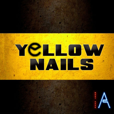 must-have-audio-yellow-nails-cover